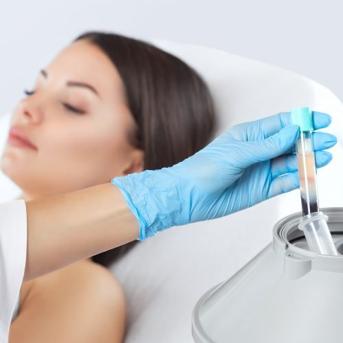 Collagen Induction Theraphy