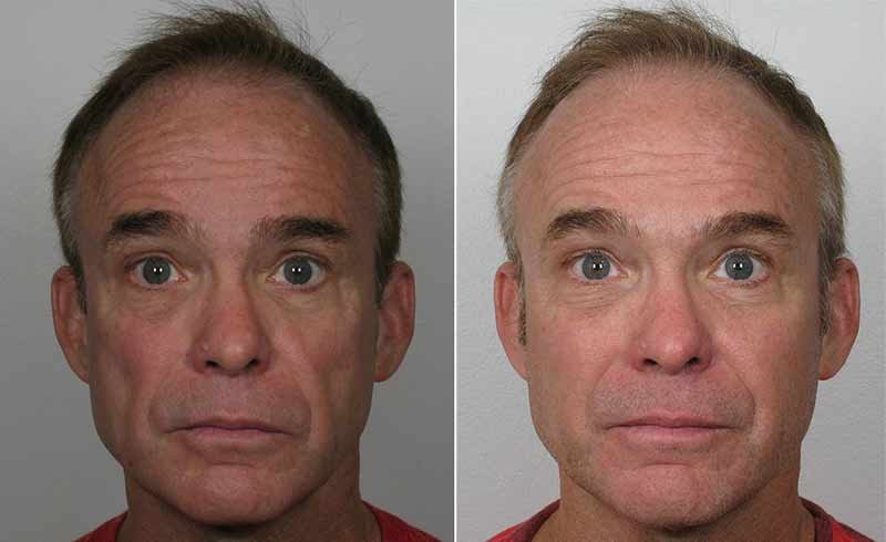 Sculptra Red Bank NJ Before and After Image